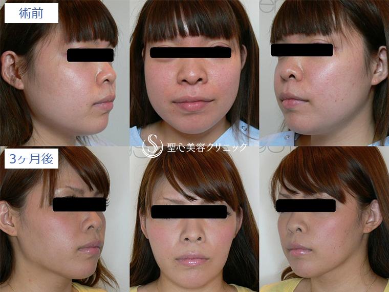 症例写真 術前後比較 小顔に整形