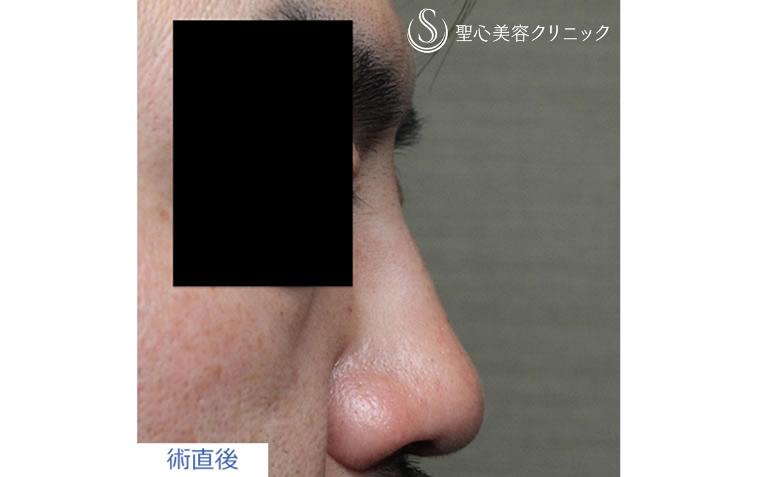症例写真 注入直後 鼻の整形