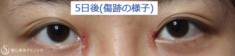 症例写真 傷跡 目のくま・くぼみ・たるみ・眼瞼下垂