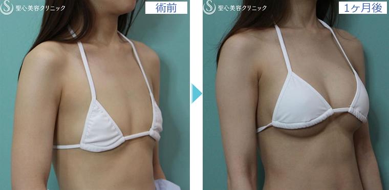 症例写真 術前術後比較 バッグプロテーゼ豊胸術
