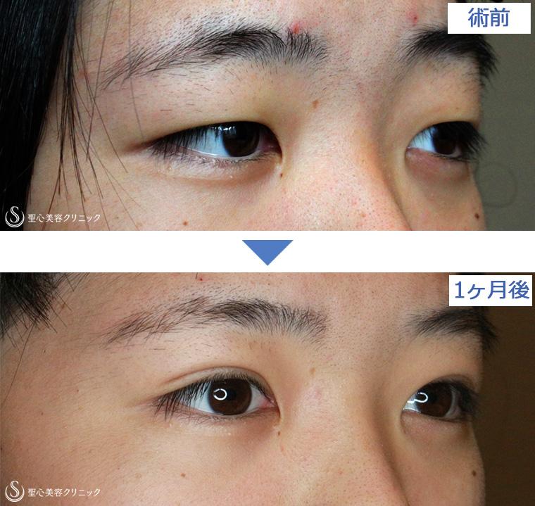 症例写真 比較 二重術・目頭切開・涙袋
