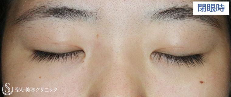 症例写真 閉眼時 二重術・目頭切開・涙袋