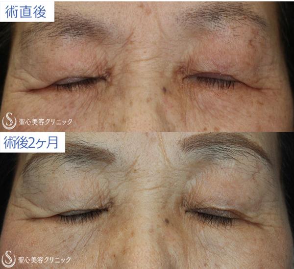 症例写真 目を閉じた状態 目のくま・くぼみ・たるみ・眼瞼下垂