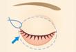 下眼瞼切開/下眼瞼除皺術/ハムラ法