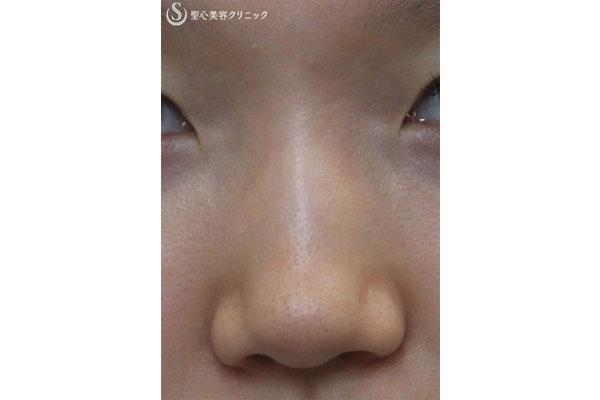 症例写真 術前 鼻のプロテーゼ
