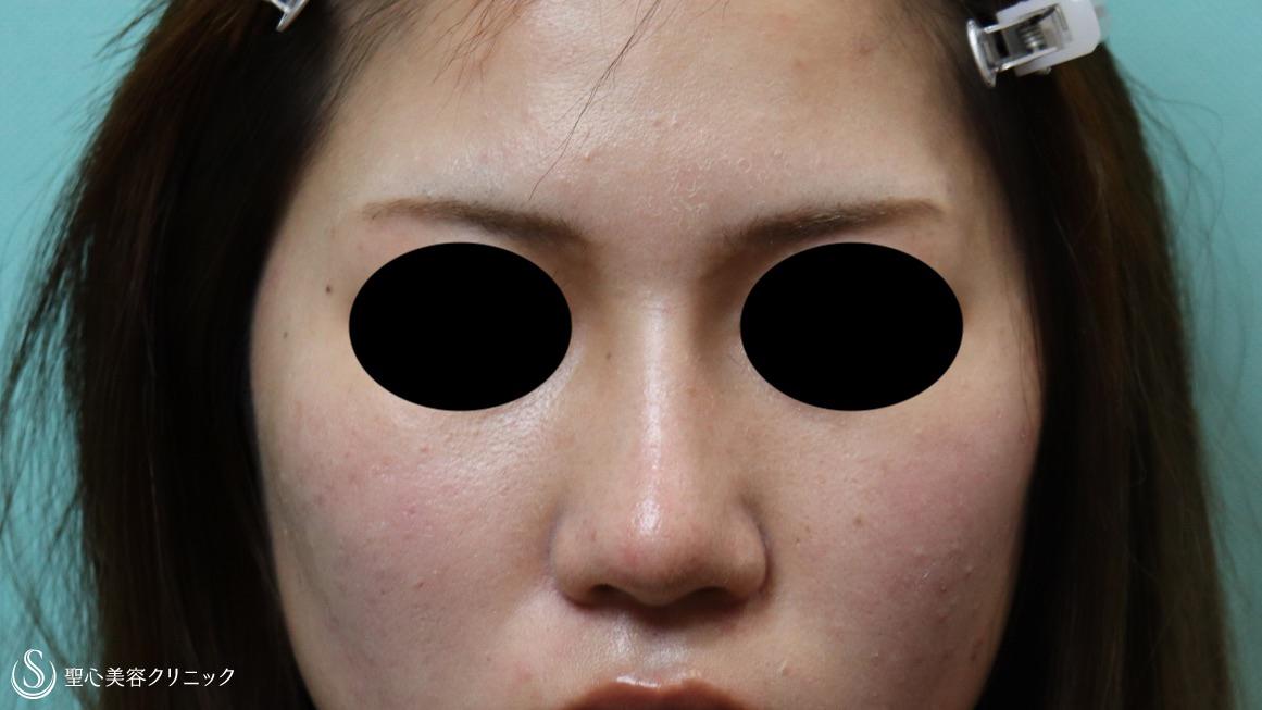 症例写真 術後 プロテーゼによる隆鼻術+鼻尖形成(耳介軟骨移植)