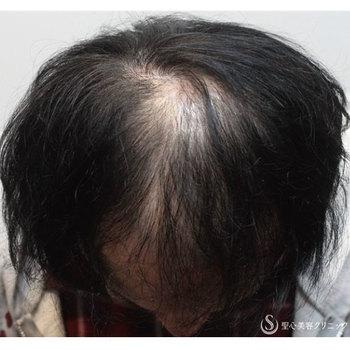 症例写真 術前 毛髪再生療法 プレミアムグロースファクター再生療法