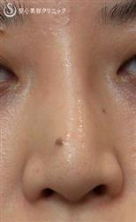 症例写真 術前 鼻のプロテーゼ入替え+耳介軟骨