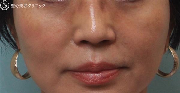 症例写真 術後 経結膜下脱脂術