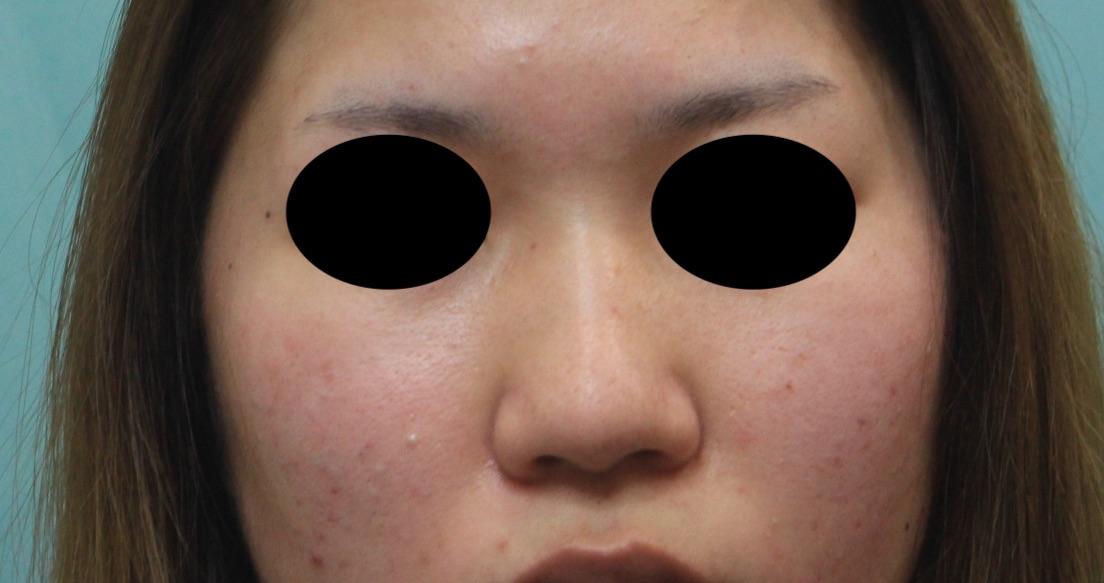 症例写真 術前 プロテーゼによる隆鼻術+鼻尖形成(耳介軟骨移植)