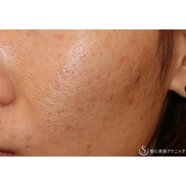 症例写真 術後 美容皮膚科 ニキビ跡・毛穴