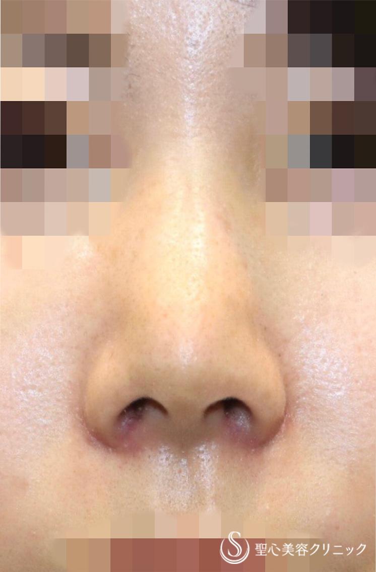 の 頭 赤い 鼻